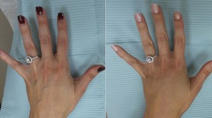 These are Christa's hands before (left) and after (right) her hand rejuvenation. (Courtesy of Dr. Ariel Ostad) ABC.com